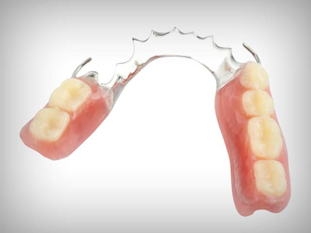 Partial Denture Questions