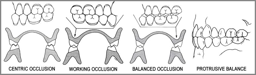 What is an Equilibrated Denture?