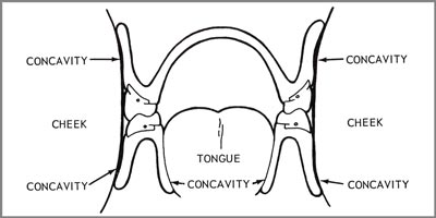Contouring the retention concavities