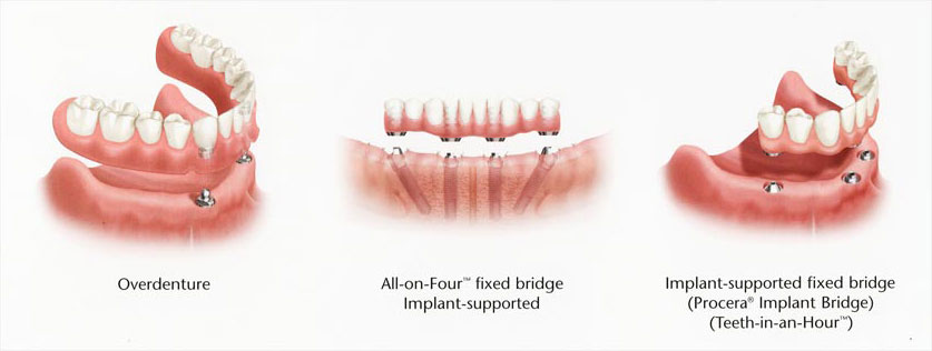 Overdenture and fixed-bridge implant dentures